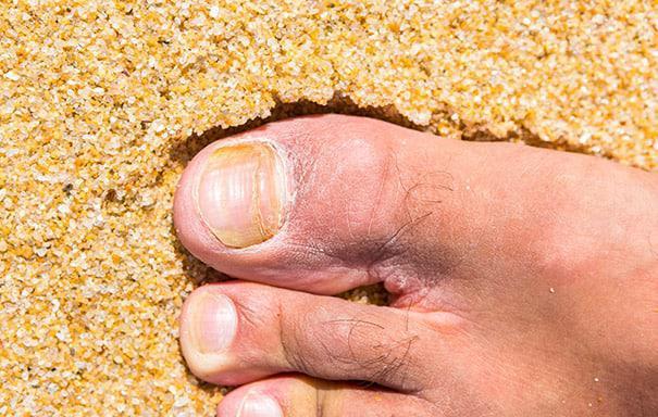 Onycosolve 100 % natürliche Inhaltsstoffe für einen gesunden Fuß